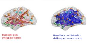 hyperconnectedneurons