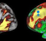 Intelligenza emotiva e intelligenza cognitiva nell'ASD