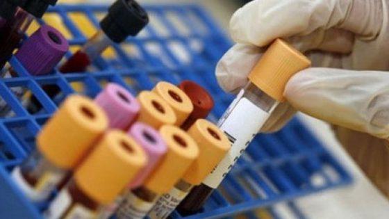 Analisi del sangue, un possibile biomarcatore per i disturbi dello spettro autistico